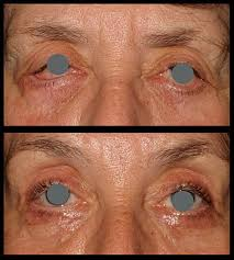 Once you can see an edge of the contact peeking out from under your eyelid, use your finger to gently slide it back down to its normal position, then take it out as usual. Cataract Surgery The Oculoplastic Factor