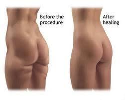 Zwelling na liposuctie