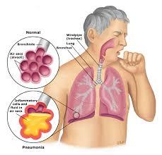 patient education pneumonia in s