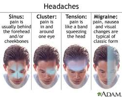 Cluster Headache Location Chart Common Migraine Symptoms And Treament Cluster Headaches