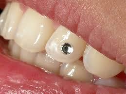 Стразы на зубах установка противопоказания цены и отзывы стразы на зубы используемые в стоматологии