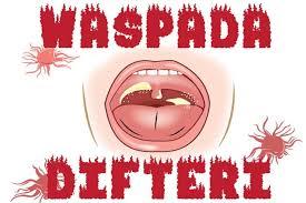 Image result for difteri