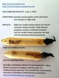 candling ears fake ear candles dangerous candle wax removal you candling ears candle ear wax removal