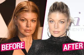 Fergie's Post-Divorce Plastic Surgery Makeover Revealed By Top Docs