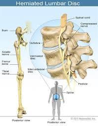 sciatica sciatic nerve location