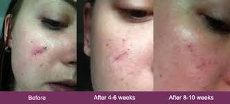 Mederma Before And After You Have To See These Pictures