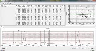 7 Best Images Of Normal Heart Rate Range Chart Actual Ekg