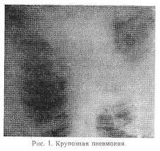 Реферат Пневмония диагностика и лечение com Банк  Пневмония диагностика и лечение