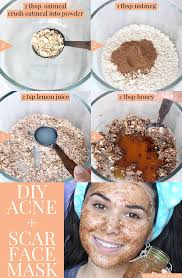 this diy face mask for acne and acne scars utilizes four ings that help tackle the problem naturally