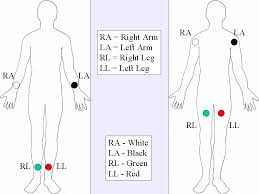 12 lead ecg lead placement diagrams ems 12 lead limb leads