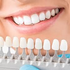 Cosmetic Dentistry Littleton Teeth Whitening Porcelain