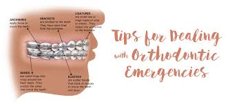 Orthodontic Tooth Chart Tips For Dealing With Orthodontic Emergencies Dougherty
