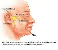 botox injections for nerve pain