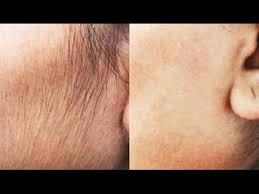 remove hair permanently at home