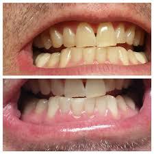 Smile Design Dental Newburgh Ny Newburgh Ny Dentist Smile Gallery Dr Koumas
