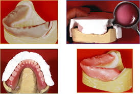 teeth setting concept of neutral zone dentistry and medicine