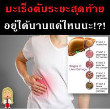 สาระสุขภาพยาน่ารู้ - มะเร็งตับระยะสุดท้าย อยู่ได้นานแค่ไหนนะ!?!  จากข่าวดาราหรือใครมากมากมายๆ ต่างประสบภาวะ #มะเร็งในวาระสุดท้าย ไม่ว่าหมอ  ผู้ป่วยและครอบครัวจะพยายามสักเพียงไหนในการต่อสู้กับโรคมะเร็งในระยะสุดท้าย  บางครั้งก็จะมาถึงจุดที่การรักษาที่ตัวโรค ...
