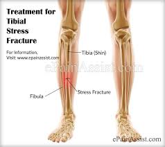 Image result for stress fracture free images. Diagram anatomically identifying the bones involved in a Stress Fracture of the leg, knee, ankle and foot.
