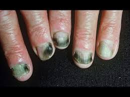 how to get rid of fingernail fungus fast naturally at home