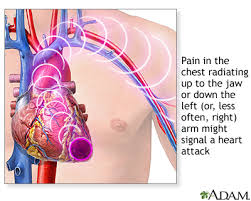 sharp pain in chest. heart attack symptoms sharp pain in chest