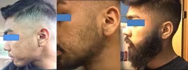 solutie pentru cresterea barbii