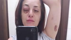 E che mi spaccassero la faccia un'altra volta': la coraggiosa denuncia di Giuliana  Danzè