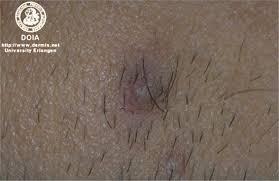 Cum tratam ranile care nu se vindeca?