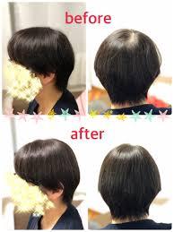 若い女子の薄毛は気になります錦糸町 ヘアロスウィッグ専門美容室の