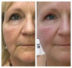 plasma therapy permanent cosmetic