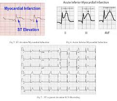 Figure 5 From Detection Of St Segment Elevation Myocardial
