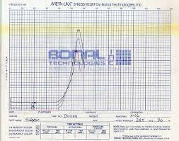 Stress Relieving Chart Example Logue Industries Inc