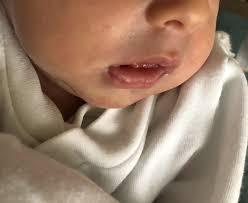 slight grey tinge around baby s top lip