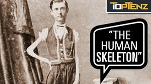 """P. T. Barnum's 10 Most Famous Human """"Freak"""" Show Attractions - YouTube"""