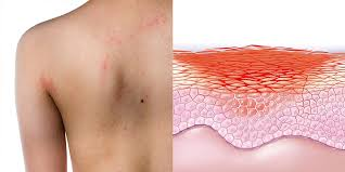 Red Itchy Skin Rashes: 7 Common Causes | SELF