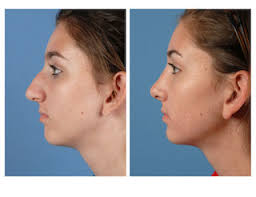 Chin Implant Size Chart Rhinoplasty What To Expect Before And After A Nose Job