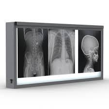 X Ray Light Xray Light Box