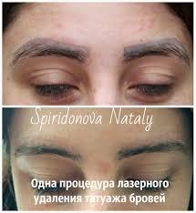 результаты лазерного удаления школа студия перманентного макияжа
