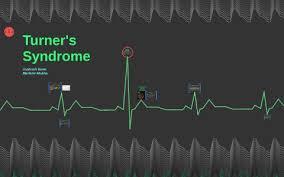 Turners Syndrome By Prezi User On Prezi