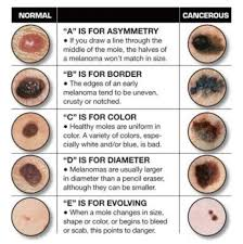 do you know your abcdes save this handy graphic and regularly do you know your abcdes save this handy graphic and regularly check your moles for these 5 signs of if you have any moles or growths you d like to get