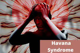 Havana Syndrome Caused The Delay In Us ...