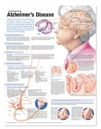 Stages Of Alzheimer S Disease Chart Understanding Alzheimers Disease Anatomical Chart Second Edition