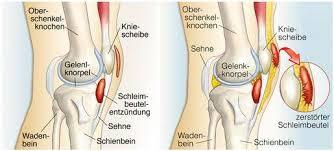 Unsere kniegelenke halten jeden tag eine menge aus. Knieschmerzen Symptomecheck Was Bedeutet Schmerz Vorne Hinten Seitlich Beim Treppensteigen Www Gelenk Doktor De