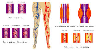 Leg Vein Chart Varicose Veins Explained Causes And Treatments Searchgo