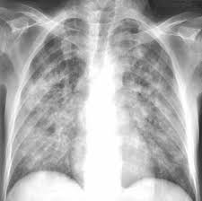 Пневмоцистная пневмония Пневмоцистоз Причины симптомы и  Пневмоцистная пневмония рентгенологическая картина