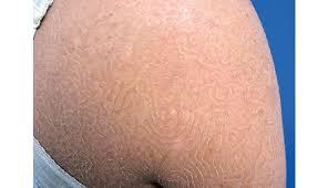 Fungal Infection Causes Swirling, 'Maze-Like' Rash