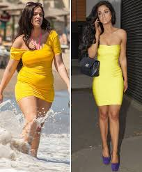 vicki pattison before and after
