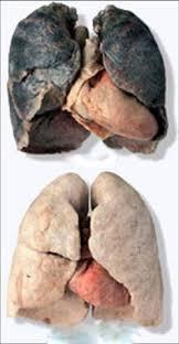 Влияние курения на органы дыхания  влияние курения на органы дыхания