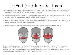 Le Fort Fracture Lefort Fractures Nurse Practitioner Pinterest