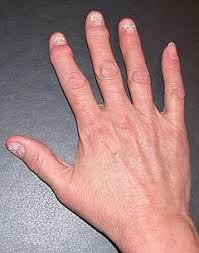 Rheuma psoriasis symptome
