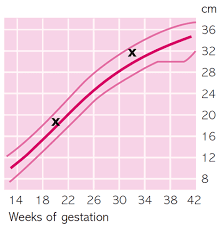 Growth Scan Chart Welcome To Your Third Trimester Part 9 Doppler Scans